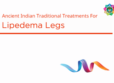 Lipedema Legs